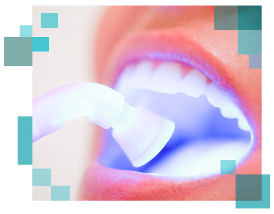 Blanqueamiento dental con luz LED fria