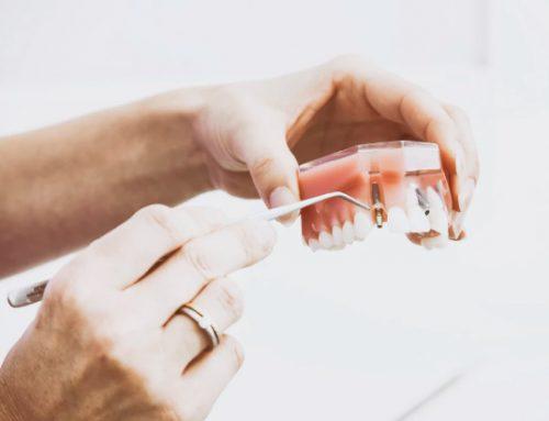 FACTORES QUE INFLUYEN EN EL FRACASO DE LA OSTEOINTEGRACIÓN DE LOS IMPLANTES DENTALES