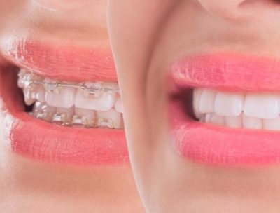 tipos-ortodoncia-full