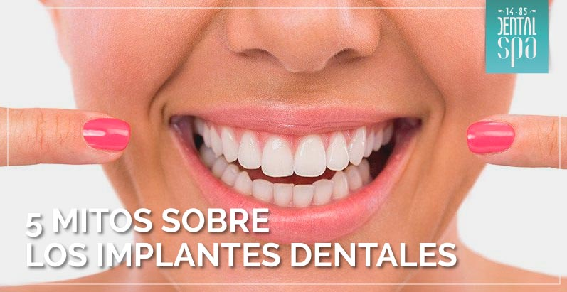 mitos implantes dentales