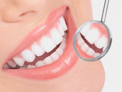 coronas-implantes-small