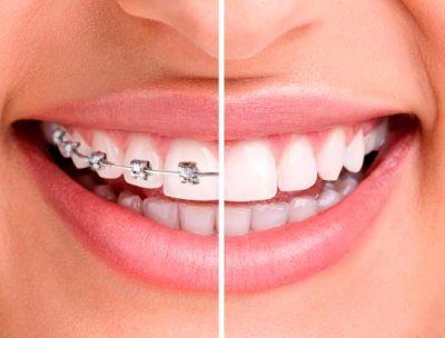 extraer-diente-ortodoncia-small