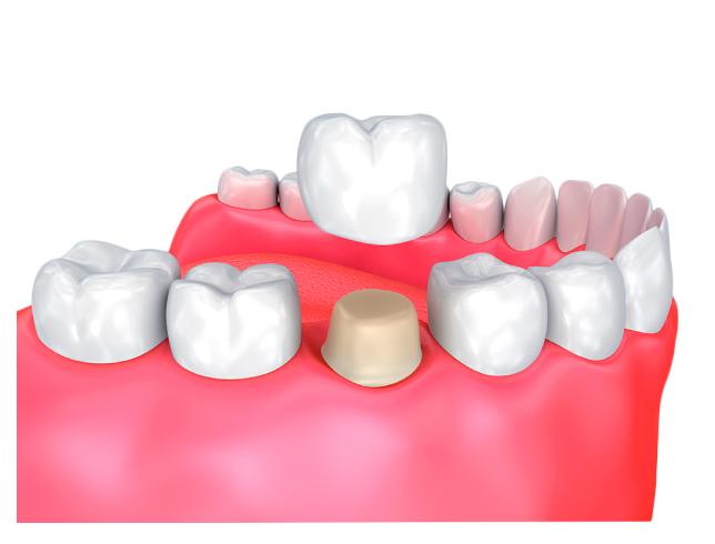 Coronas dentales en bogotá coronas en cerámica