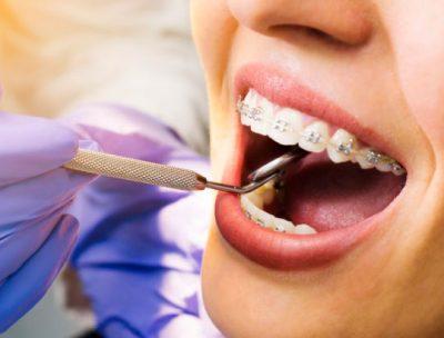 Conoce las 7 fases de la ortodoncia