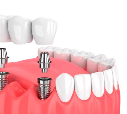 Implantes dentales Bogotá