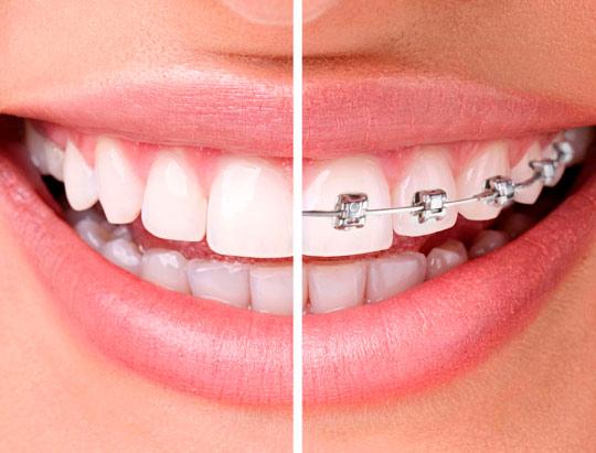 ortodoncia bogoa