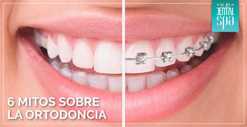 ortodoncia-precio-bogota