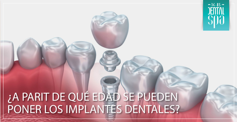 edad-implantes-dentales-interna