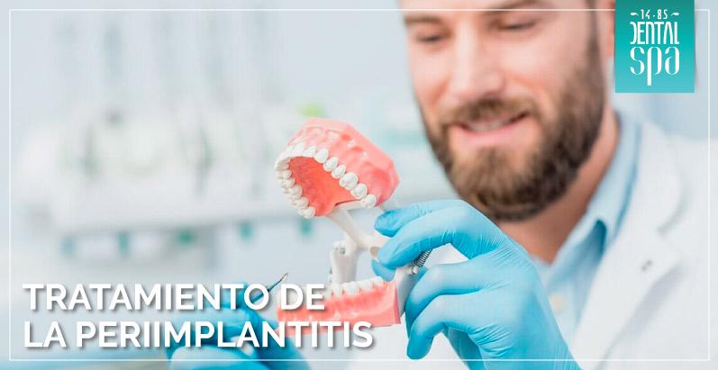 tratamiento-periimplantitis-int