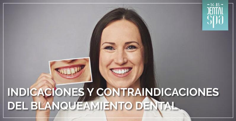 Indicaciones y contraindicaciones del blanqueamiento dental