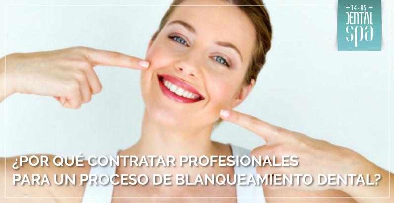¿Por qué contratar profesionales para un proceso de blanqueamiento dental?