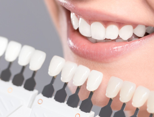 ¿Qué tipo de blanqueamiento dental es más efectivo?