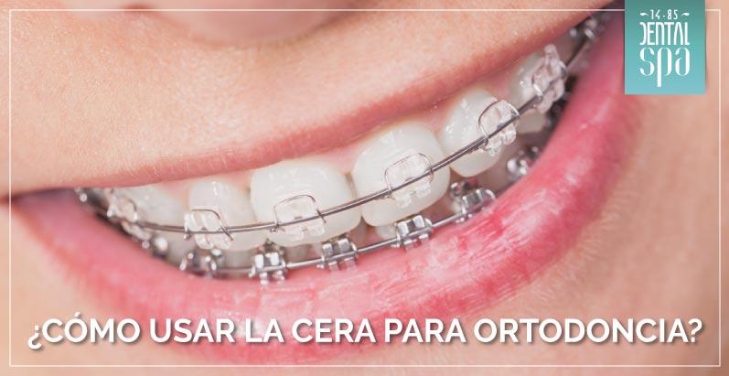 ¿Cómo usar la cera para ortodoncia?