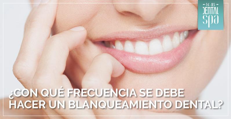 frecuencia blanqueamiento dental