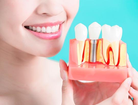 Cuánto tiempo se tarda en hacer un implante dental