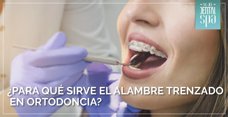 alambre trenzado en ortodoncia