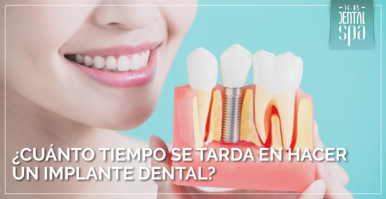 tiempo se tarda en hacer un implante dental