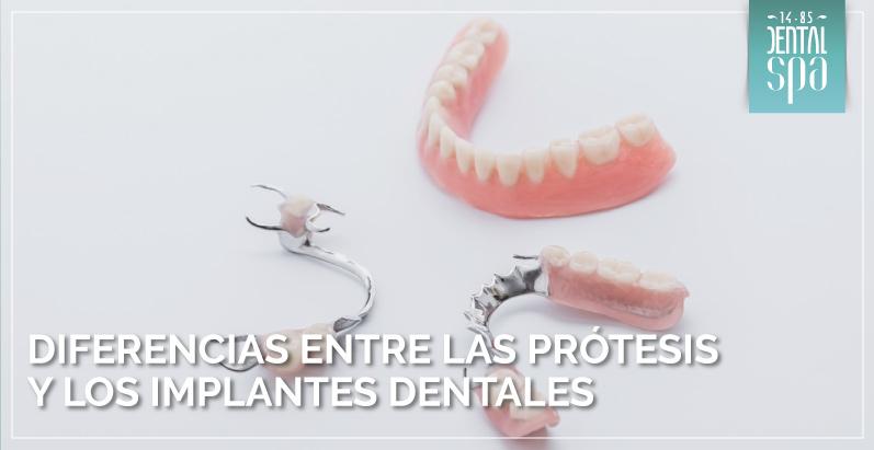 Diferencias entre las prótesis y los implantes dentales
