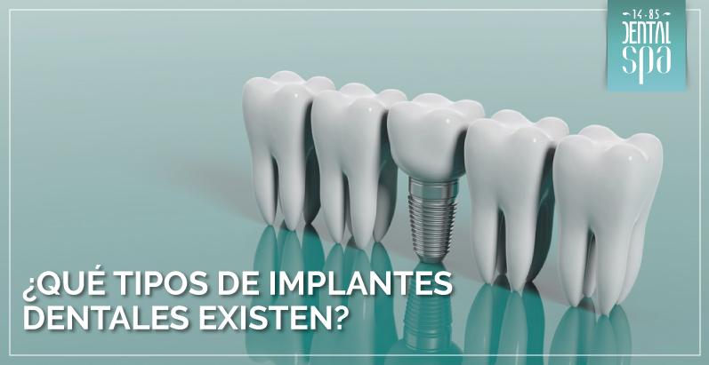 ¿Qué tipos de implantes dentales existen?