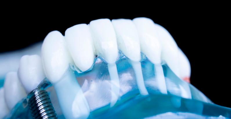 Kit de implantes dentales: Todo lo que necesitas saber