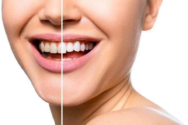 ¿En qué situaciones puedo utilizar carillas dentales?