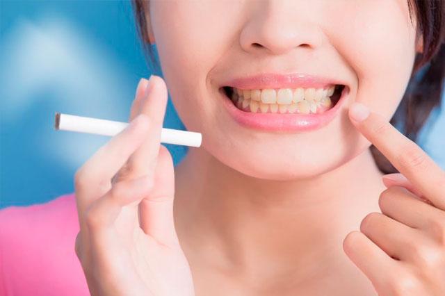 ¿Qué tanto afecta el tabaco a nuestros dientes?