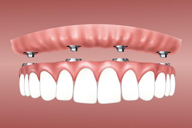 5 cuidados que debes tener con tus implantes dentales