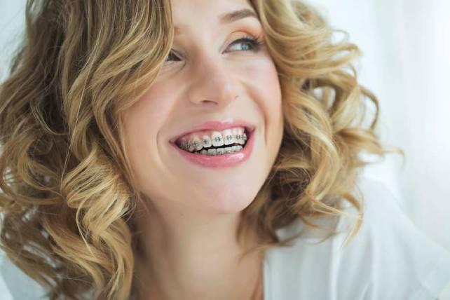 Características de una ortodoncia en Bogotá de calidad