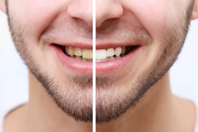 5 aspectos que debes conocer sobre el blanqueamiento dental