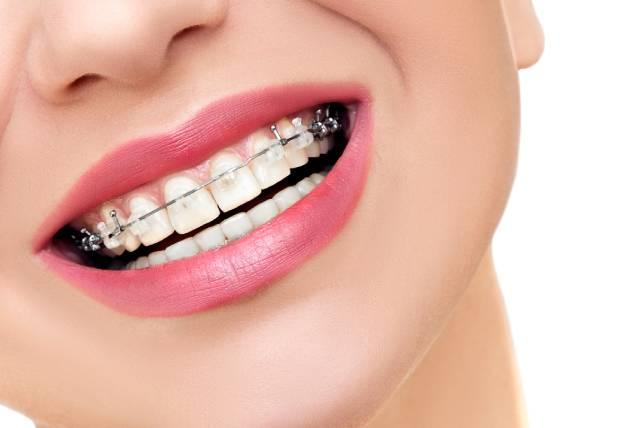 5 características para tener en cuenta de la ortodoncia en Bogotá